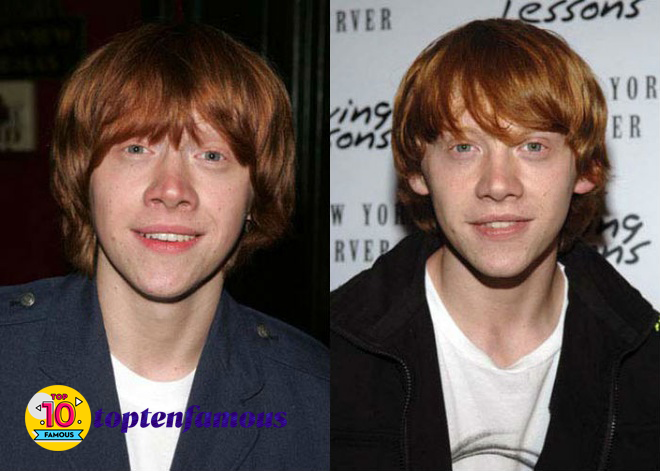 Rupert Grint in Harry Potter Then and Now
